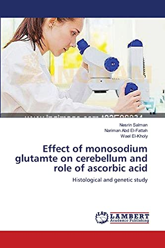 Effect of Monosodium Glutamte on Cerebellum and Role of Ascorbic Acid